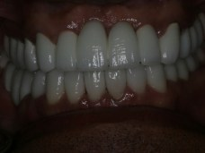 smile makeover - Fantastic Smiles of Houston